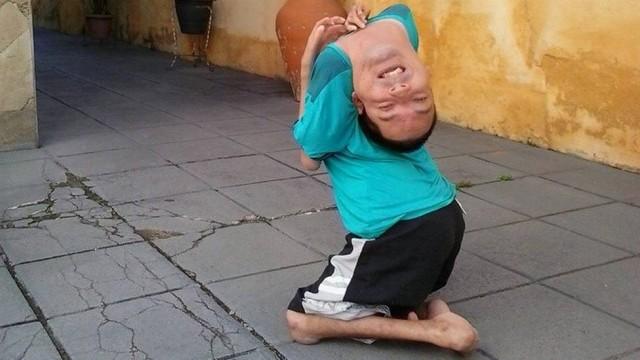 Claudio nasceu com artrogripose congênita e foi desacreditado pelos médicos.