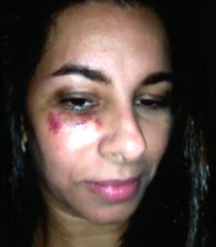 Aline levou vários chutes e socos do assaltante.