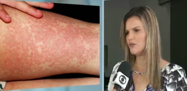 Na Paraíba, saúde confirma surto de doença com manchas vermelhas no corpo