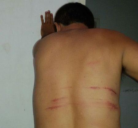 Em São Vicente, homem diz ter sido agredido por policiais após procurar atendimento médico em hospital