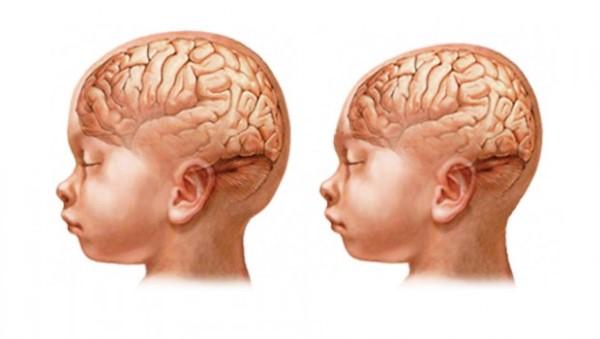 Ministério da Saúde envia equipe para investigar microcefalia no RN
