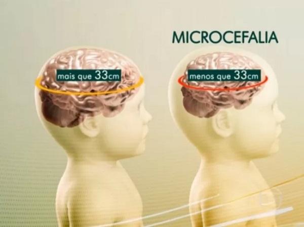 Em dois meses, 4 bebês morreram no RN; 3 deles com microcefalia