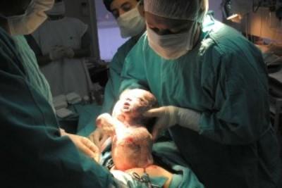 RN tem maior número de mortes de bebês por microcefalia do Brasil