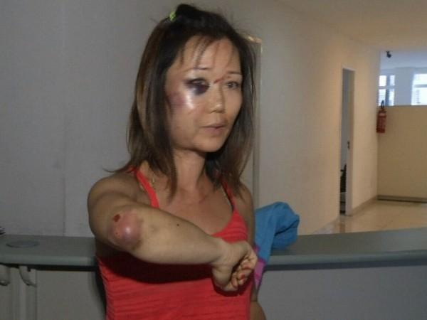 Turista de 39 anos teve ferimentos no rosto e no braço (Foto: TV Diário/Reprodução)