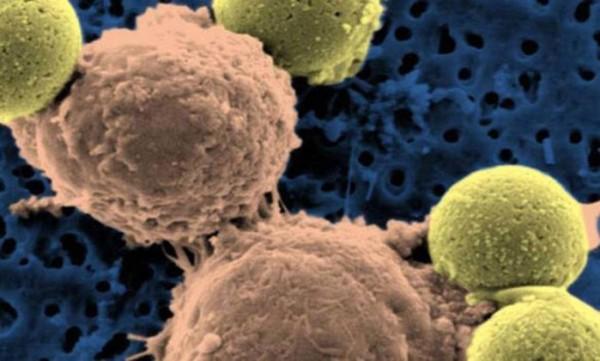 Novo tratamento do câncer mostra resultados promissores