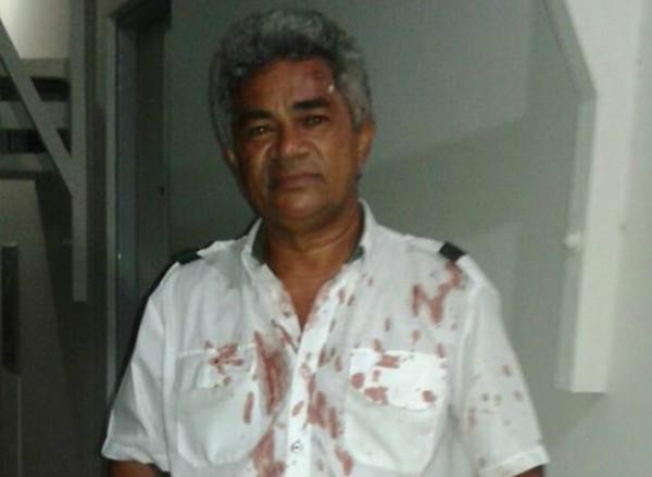 Motorista é agredido durante assalto a ônibus em Natal