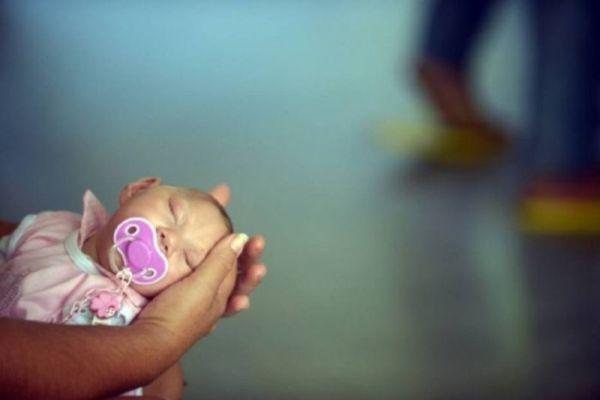 EUA têm primeiro bebê com microcefalia ligado ao Zika