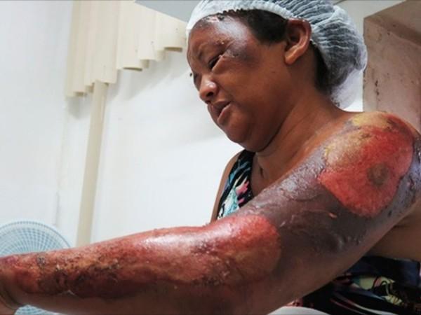 Após briga em jogo de futebol, mãe e filha são queimadas em Mossoró